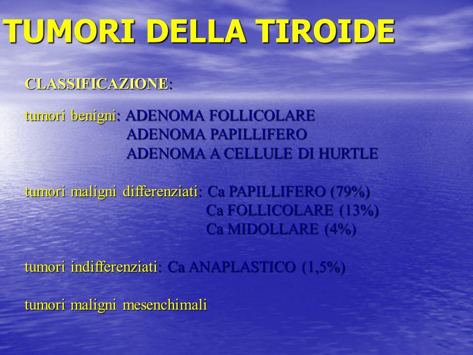 TUMORI DELLA TIROIDE CLASSIFICAZIONE: tumori benigni: ADENOMA FOLLICOLARE ADENOMA PAPILLIFERO ADENOMA PAPILLIFERO ADENOMA A CELLULE DI HURTLE ADENOMA