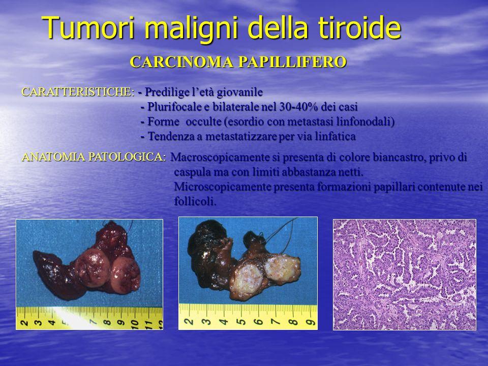 Tumori maligni della tiroide CARCINOMA PAPILLIFERO CARATTERISTICHE: - Predilige letà giovanile - Plurifocale e bilaterale nel 30-40% dei casi - Plurif