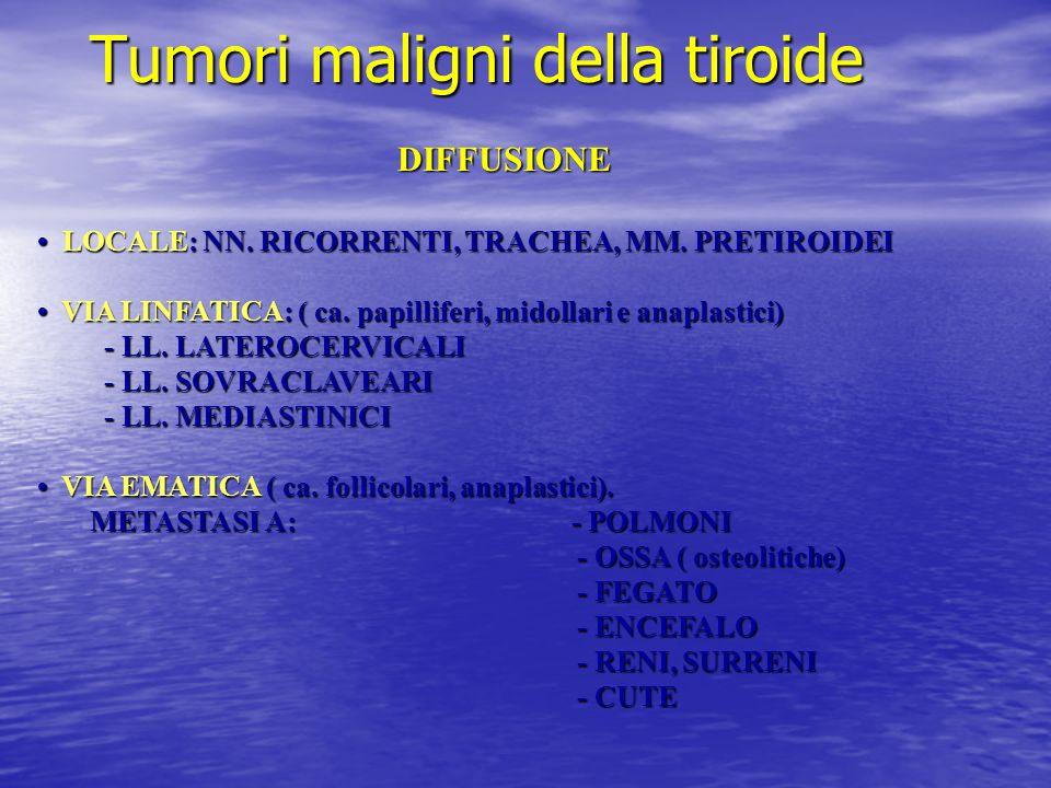 Tumori maligni della tiroide DIFFUSIONE LOCALE: NN. RICORRENTI, TRACHEA, MM. PRETIROIDEI LOCALE: NN. RICORRENTI, TRACHEA, MM. PRETIROIDEI VIA LINFATIC