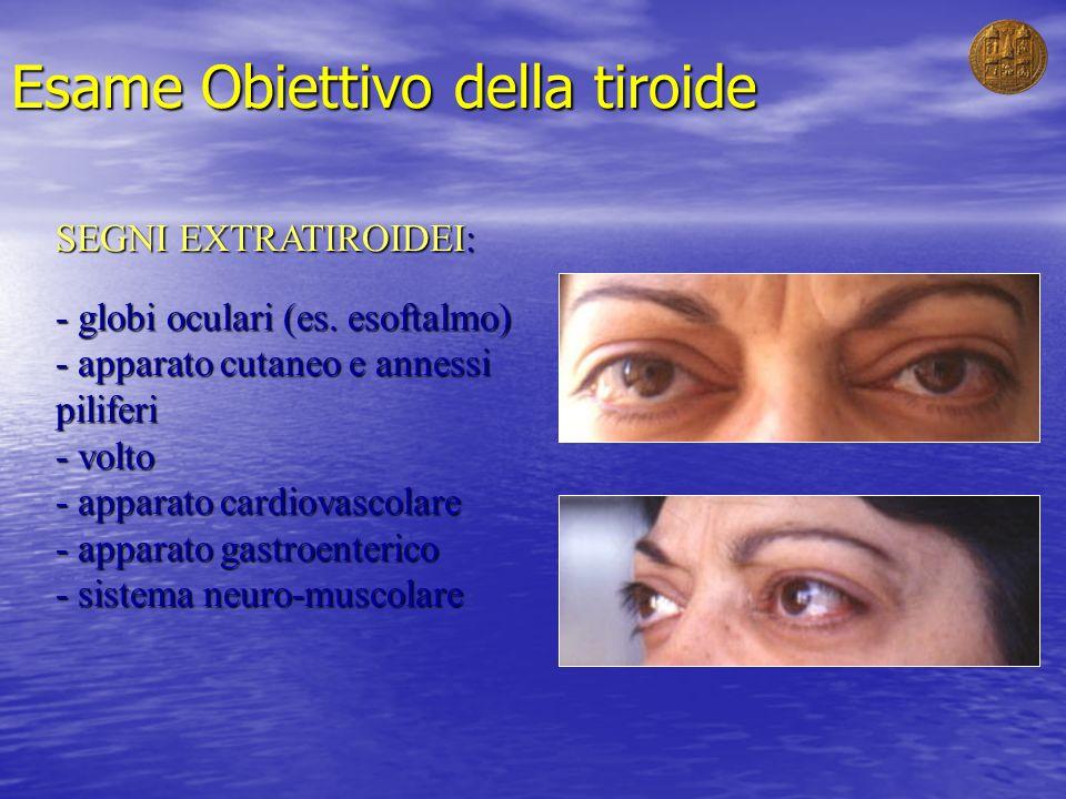 Esame Obiettivo della tiroide SEGNI EXTRATIROIDEI: - globi oculari (es. esoftalmo) - apparato cutaneo e annessi piliferi - volto - apparato cardiovasc