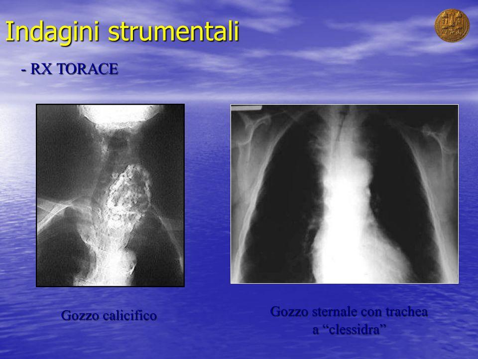 Indagini strumentali - RX TORACE Gozzo calicifico Gozzo sternale con trachea a clessidra