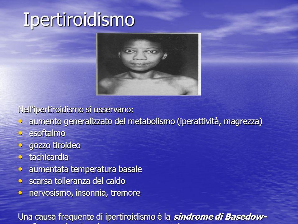 Ipertiroidismo Nellipertiroidismo si osservano: aumento generalizzato del metabolismo (iperattività, magrezza) aumento generalizzato del metabolismo (