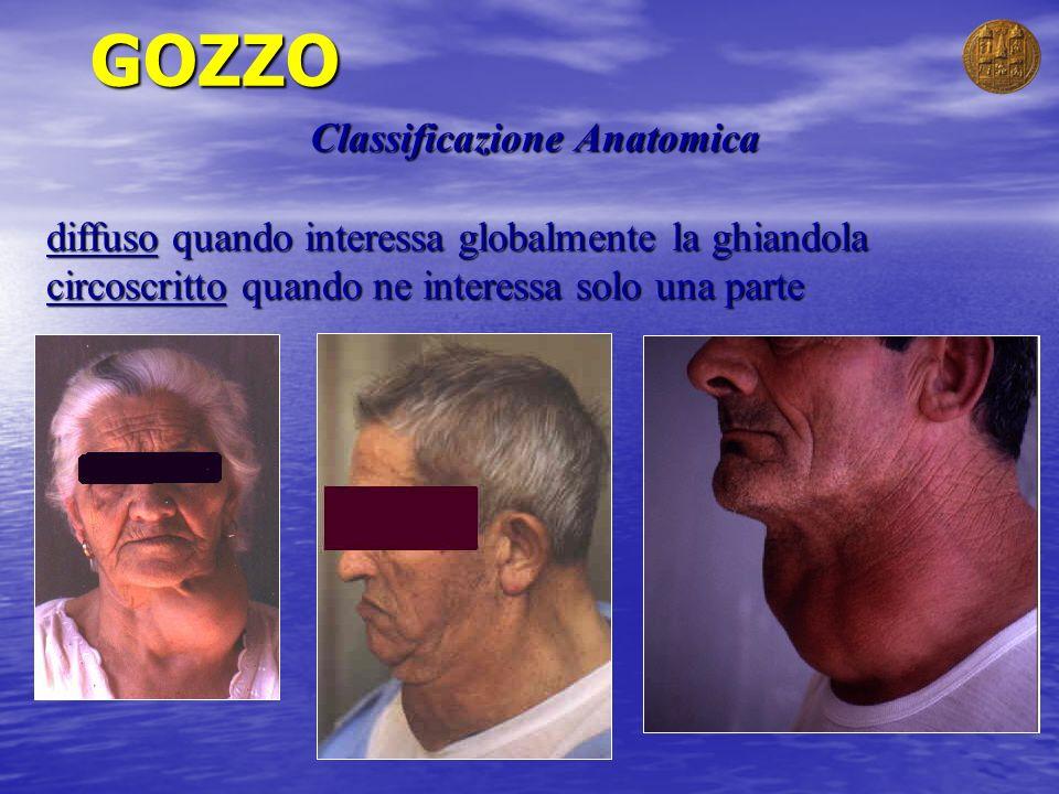 GOZZO Classificazione Anatomica diffuso quando interessa globalmente la ghiandola circoscritto quando ne interessa solo una parte