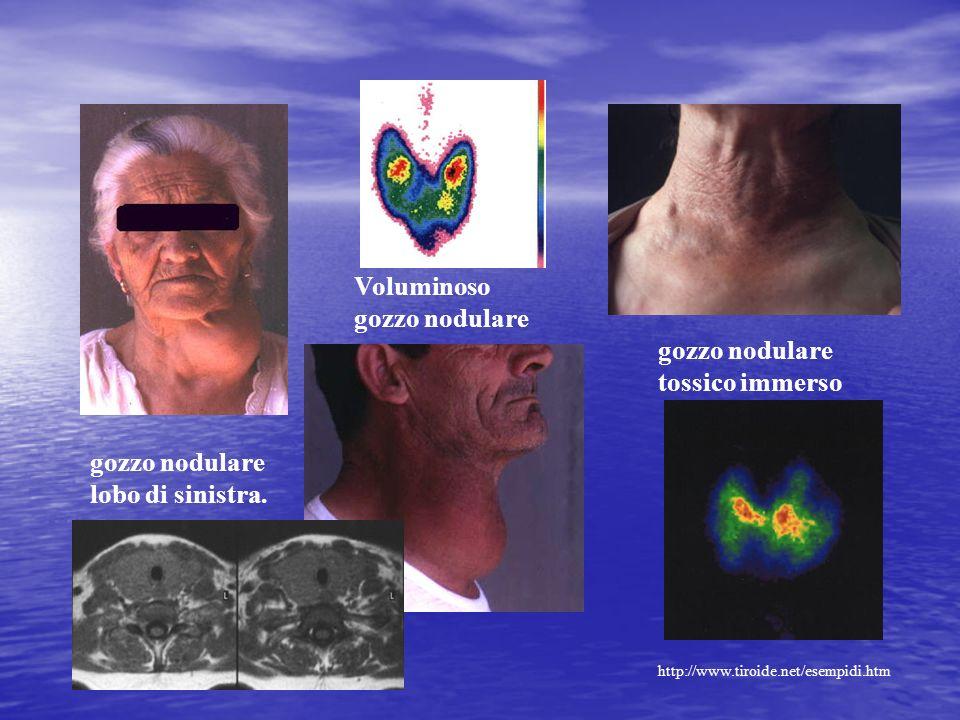gozzo nodulare lobo di sinistra. Voluminoso gozzo nodulare gozzo nodulare tossico immerso http://www.tiroide.net/esempidi.htm