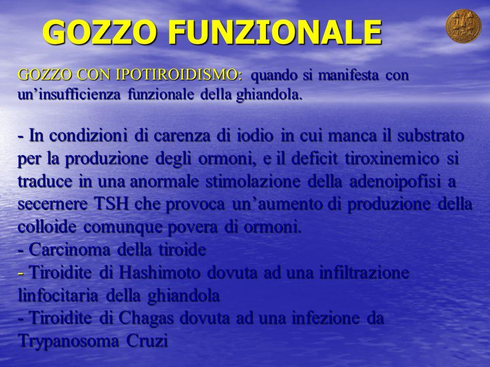 GOZZO FUNZIONALE GOZZO CON IPOTIROIDISMO: quando si manifesta con uninsufficienza funzionale della ghiandola. - In condizioni di carenza di iodio in c