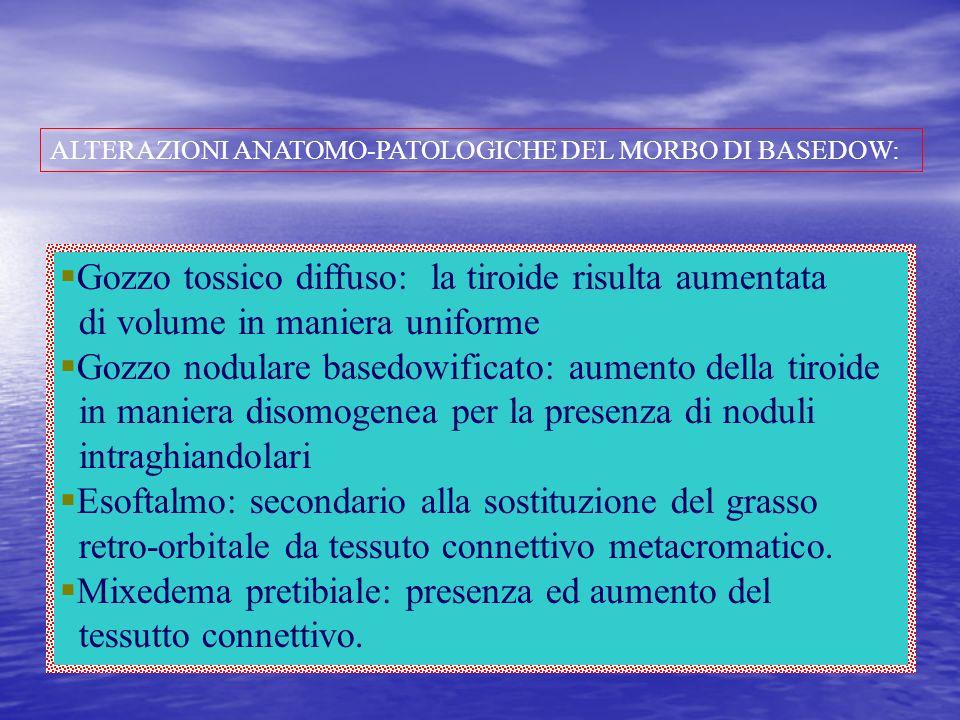 ALTERAZIONI ANATOMO-PATOLOGICHE DEL MORBO DI BASEDOW: Gozzo tossico diffuso: la tiroide risulta aumentata di volume in maniera uniforme Gozzo nodulare
