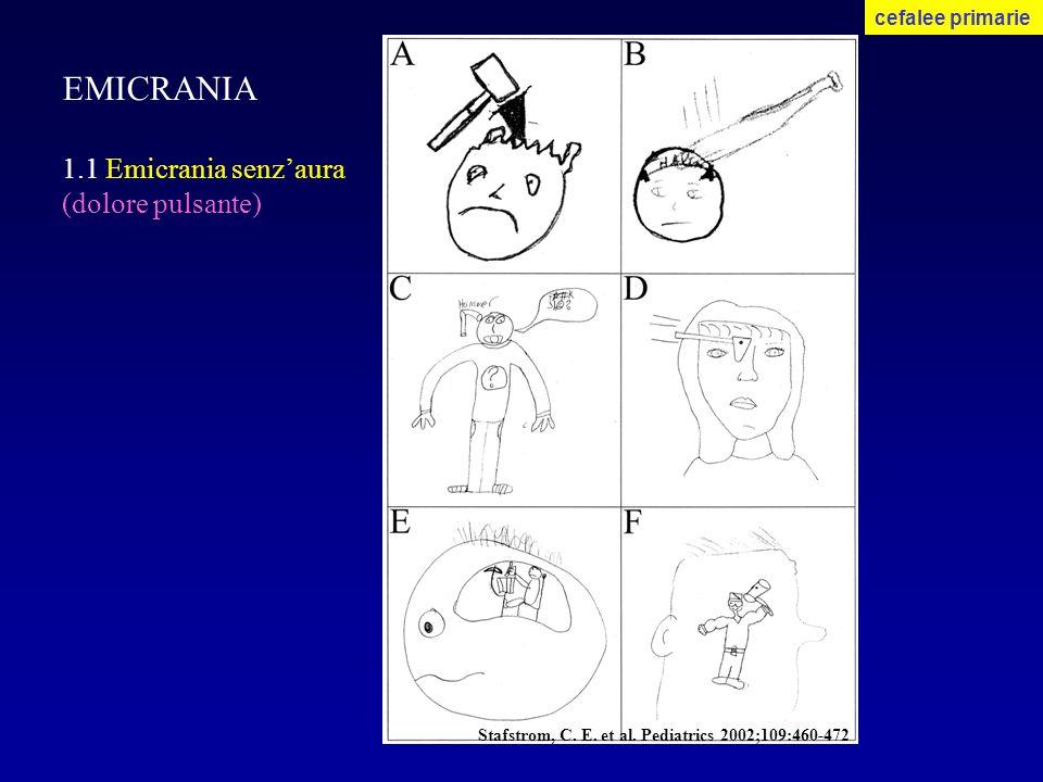 EMICRANIA 1.1 Emicrania senzaura (dolore pulsante) cefalee primarie Stafstrom, C. E. et al. Pediatrics 2002;109:460-472