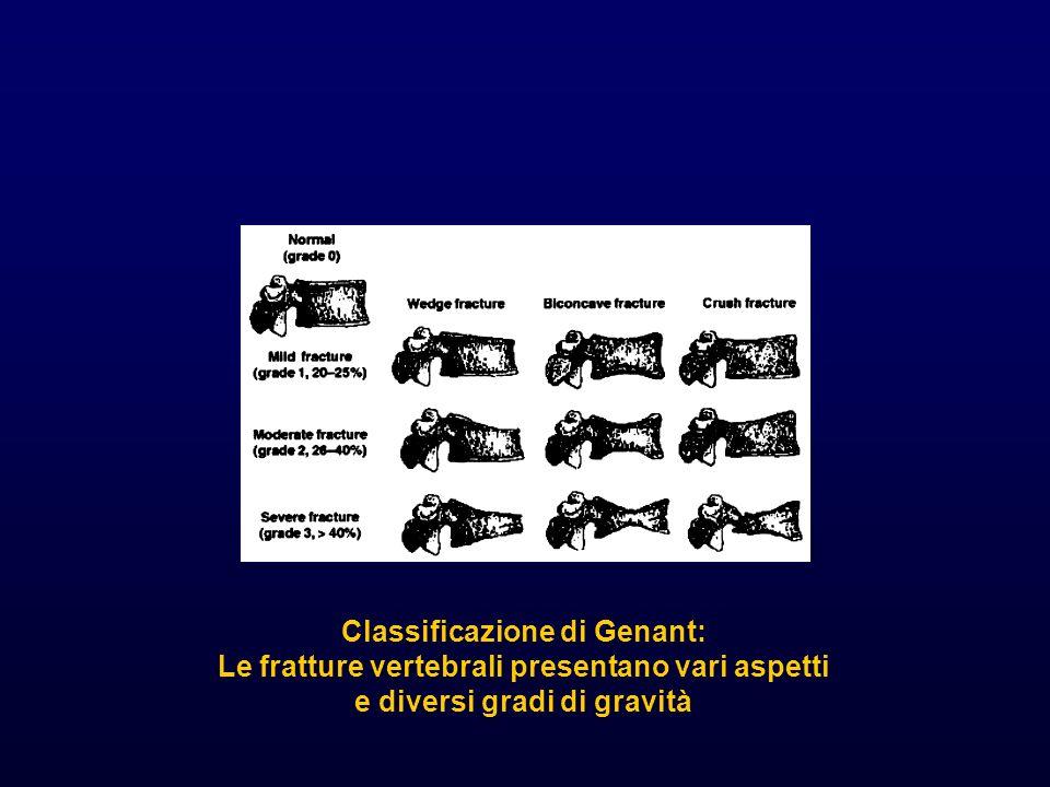 Classificazione di Genant: Le fratture vertebrali presentano vari aspetti e diversi gradi di gravità