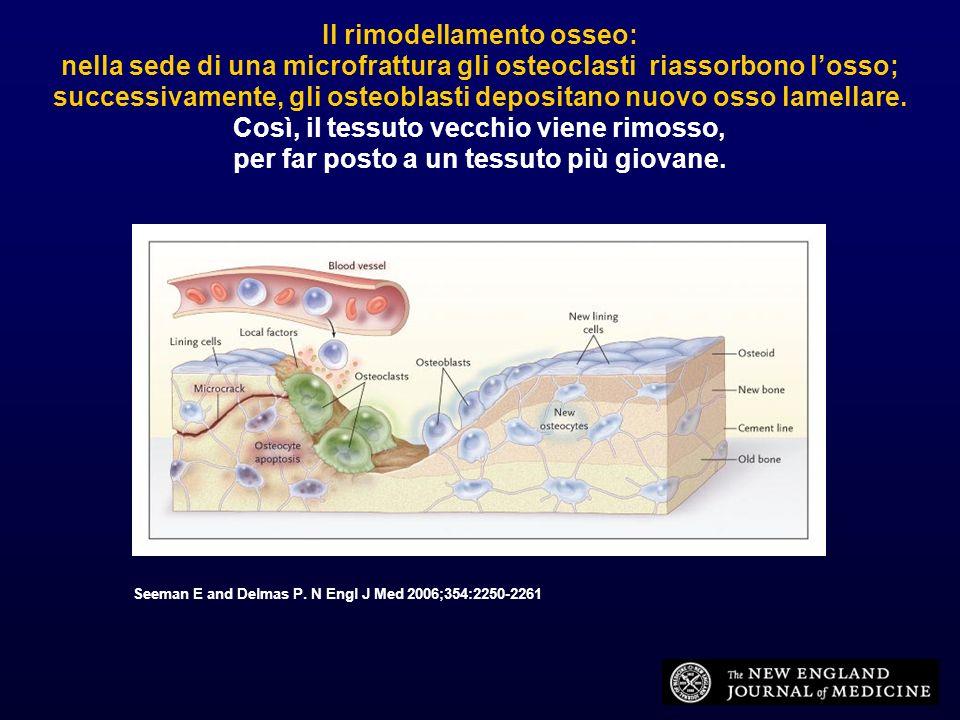 Osteoporosi primaria tipo Itipo II (postmenopausa) (senile) Rapporto F:M 6:12:1 Età 50-60 aa65-80 aa Perdita ossea trabecolaretrab.
