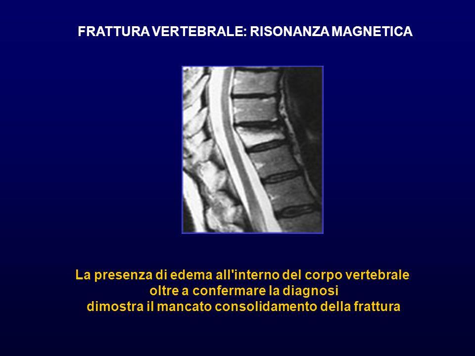 La presenza di edema all'interno del corpo vertebrale oltre a confermare la diagnosi dimostra il mancato consolidamento della frattura FRATTURA VERTEB
