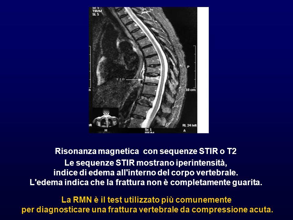 Risonanza magnetica con sequenze STIR o T2 Le sequenze STIR mostrano iperintensità, indice di edema all'interno del corpo vertebrale. L'edema indica c
