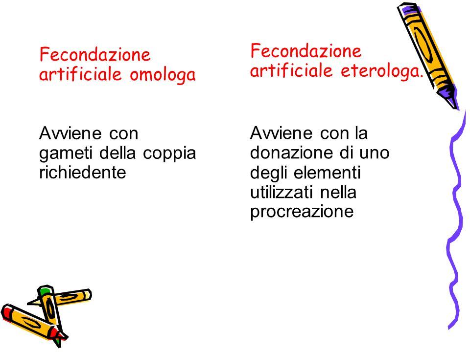Fecondazione artificiale omologa Avviene con gameti della coppia richiedente Fecondazione artificiale eterologa.