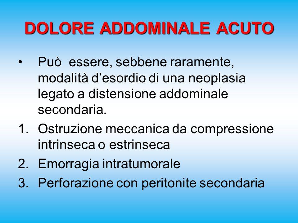 DOLORE ADDOMINALE ACUTO Può essere, sebbene raramente, modalità desordio di una neoplasia legato a distensione addominale secondaria.