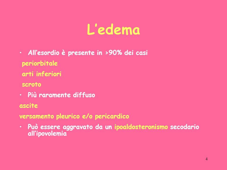 4 Ledema Allesordio è presente in >90% dei casi periorbitale arti inferiori scroto Più raramente diffuso ascite versamento pleurico e/o pericardico Può essere aggravato da un ipoaldosteronismo secodario allipovolemia
