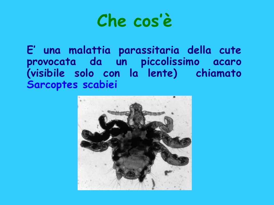 Che cosè E una malattia parassitaria della cute provocata da un piccolissimo acaro (visibile solo con la lente) chiamato Sarcoptes scabiei