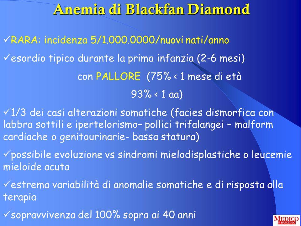 Anemia di Blackfan Diamond RARA: incidenza 5/1.000.0000/nuovi nati/anno esordio tipico durante la prima infanzia (2-6 mesi) con PALLORE (75% < 1 mese