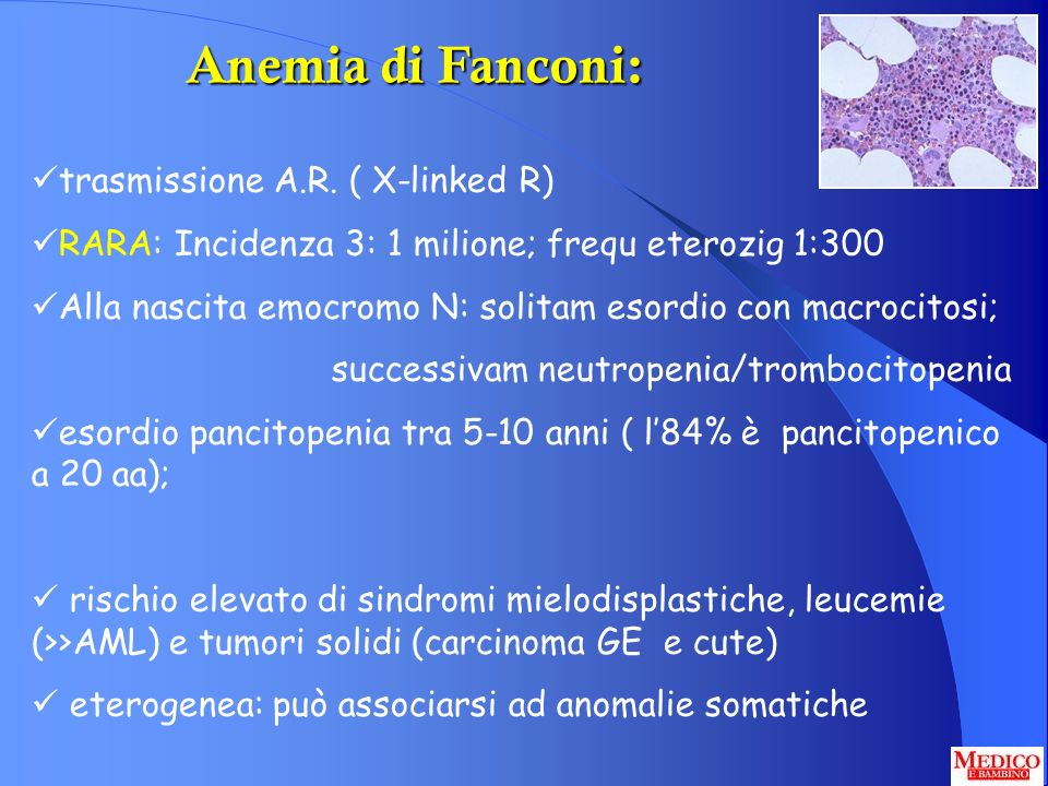 Anemia di Fanconi: trasmissione A.R. ( X-linked R) RARA: Incidenza 3: 1 milione; frequ eterozig 1:300 Alla nascita emocromo N: solitam esordio con mac