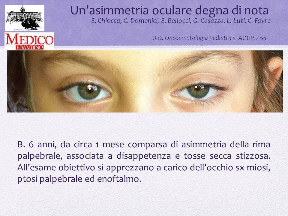 Unasimmetria oculare degna di nota.. E. Chiocca, C. Domenici, E. Bellocci, G. Casazza, L. Luti, C. Favre U.O. Oncoematologia Pediatrica AOUP, Pisa B.