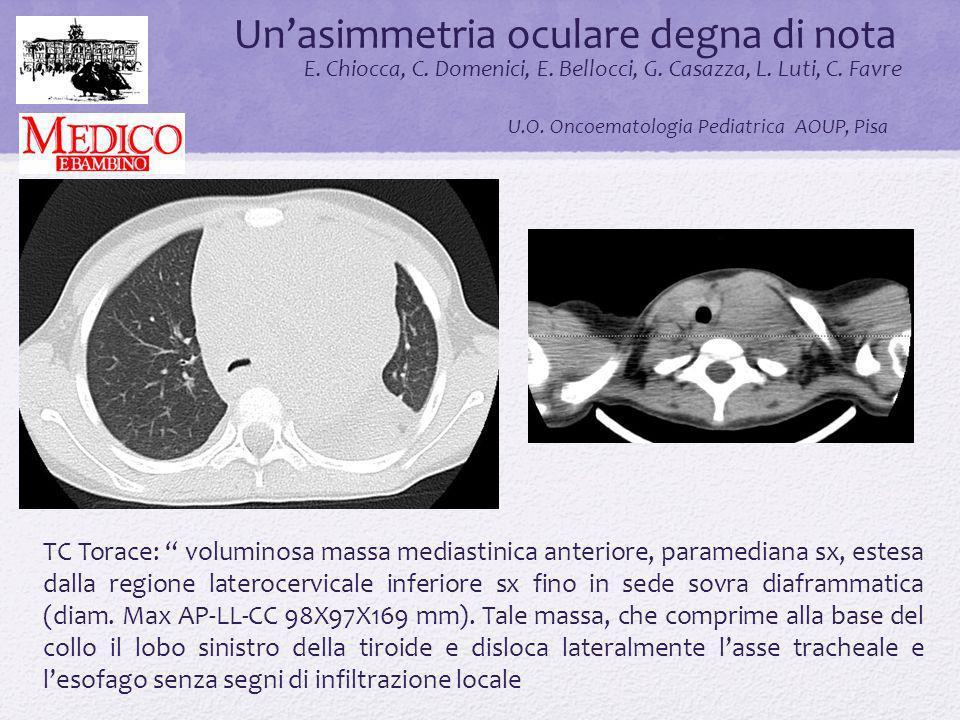 Unasimmetria oculare degna di nota.. E. Chiocca, C. Domenici, E. Bellocci, G. Casazza, L. Luti, C. Favre U.O. Oncoematologia Pediatrica AOUP, Pisa TC