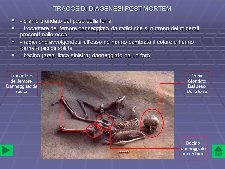 TRACCE DI DIAGENESI POST MORTEM - cranio sfondato dal peso della terra - cranio sfondato dal peso della terra - trocantere del femore danneggiato da r