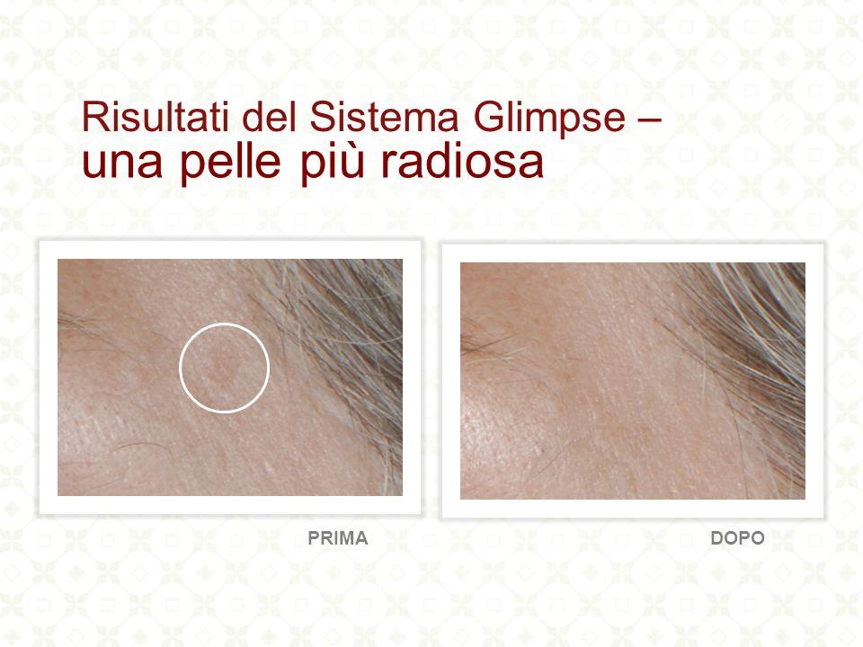 l 80% riportato un aspetto ridotto di rughe e di rughette il 90% ha mostrato un aumento dell idratazione della pelle il 100% ha riportato i miglioramenti nella radiosità della pelle Punti salienti: Risultati clinici di Glimpse