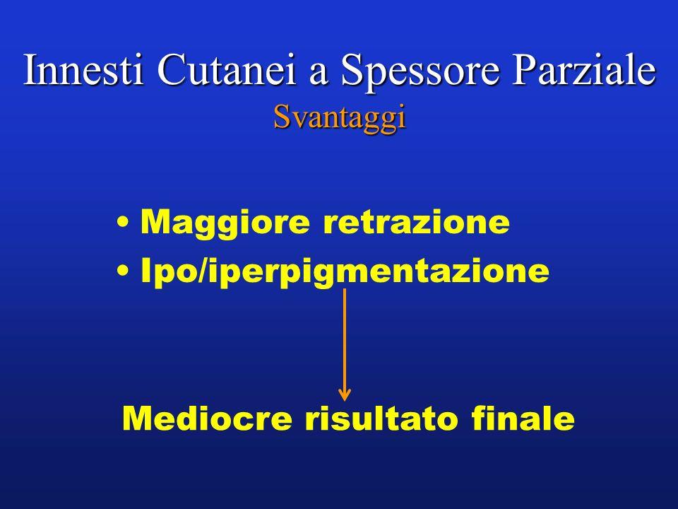 Innesti Cutanei a Spessore Parziale Svantaggi Maggiore retrazione Ipo/iperpigmentazione Mediocre risultato finale