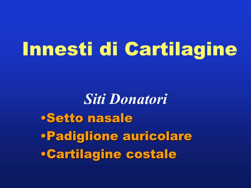 Innesti di Cartilagine Siti Donatori Setto nasaleSetto nasale Padiglione auricolarePadiglione auricolare Cartilagine costaleCartilagine costale