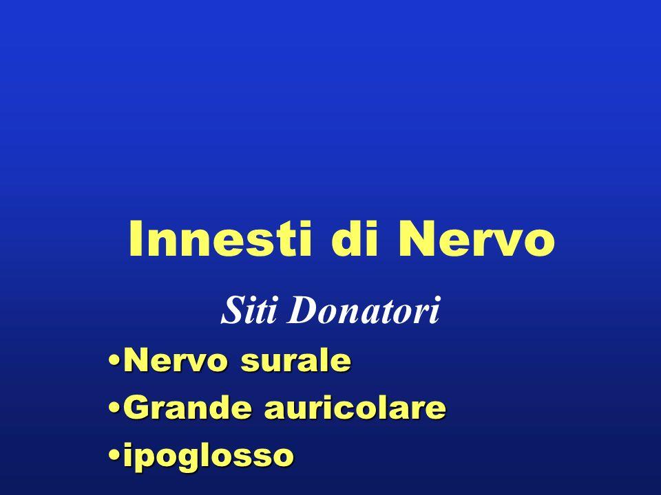 Innesti di Nervo Siti Donatori Nervo suraleNervo surale Grande auricolareGrande auricolare ipoglossoipoglosso