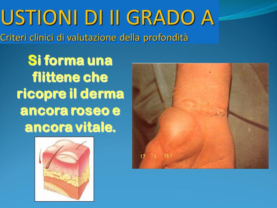 USTIONI DI II GRADO A Criteri clinici di valutazione della profondità Si forma una flittene che ricopre il derma ancora roseo e ancora vitale.