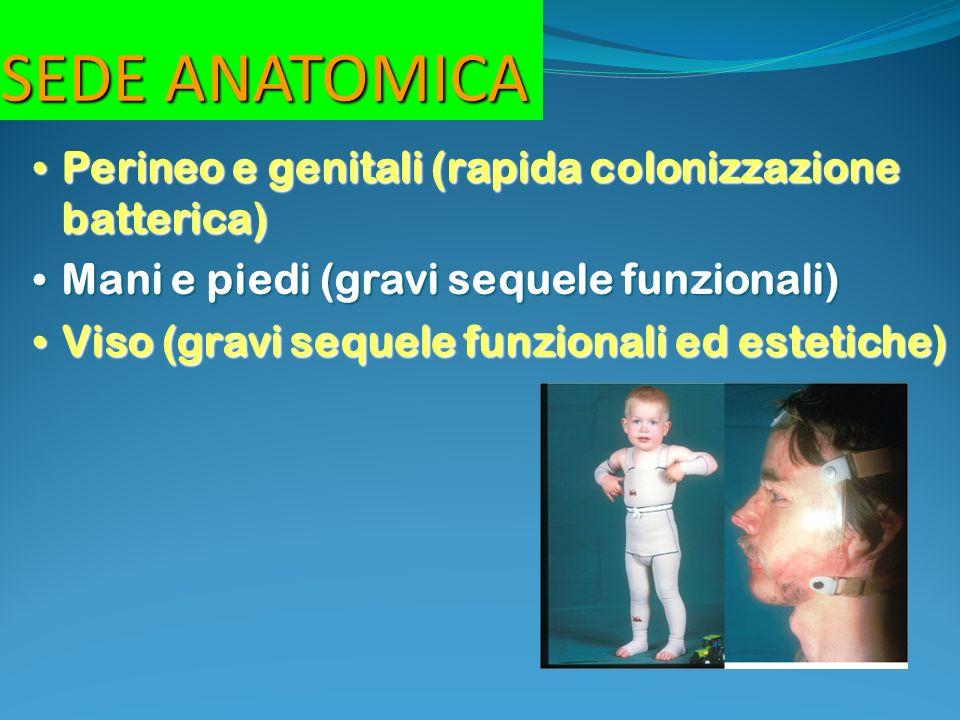 SEDE ANATOMICA Perineo e genitali (rapida colonizzazione batterica) Perineo e genitali (rapida colonizzazione batterica) Mani e piedi (gravi sequele f