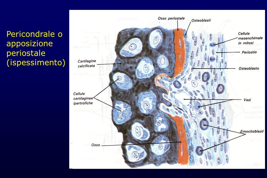Pericondrale o apposizione periostale (ispessimento)