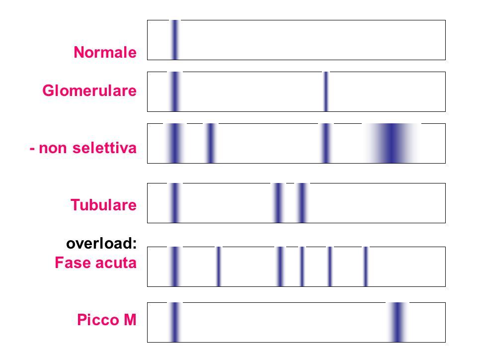 Normale Glomerulare - non selettiva Tubulare overload: Fase acuta Picco M