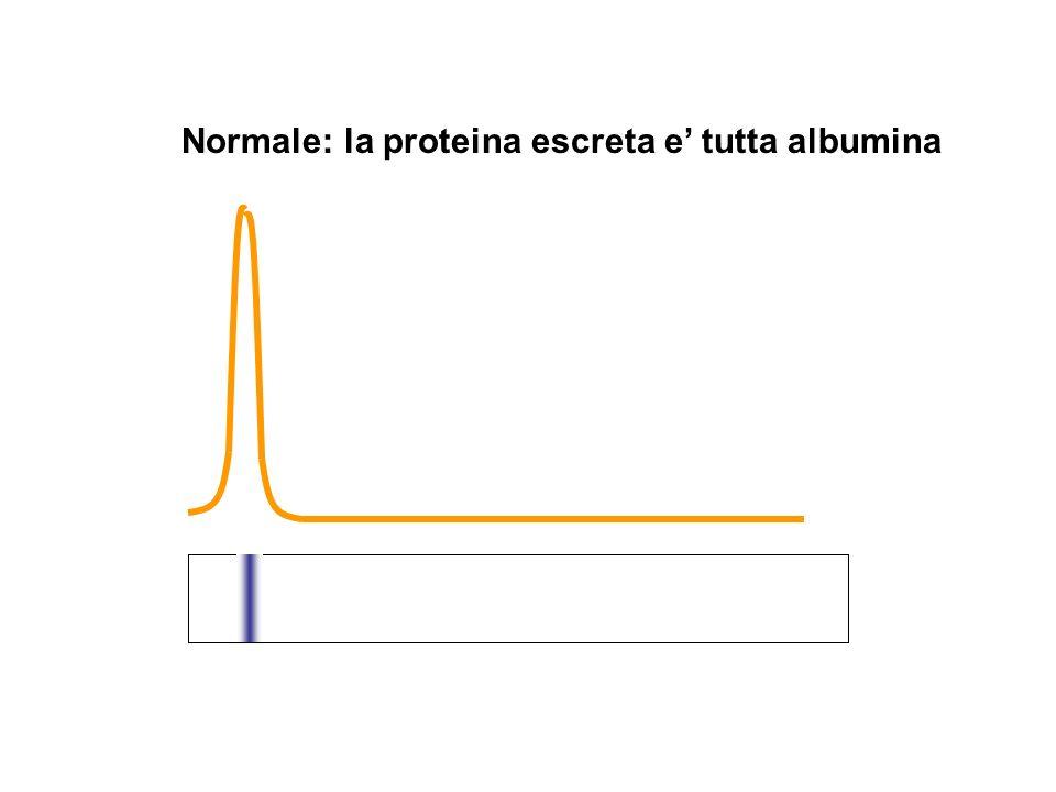 Normale: la proteina escreta e tutta albumina 34