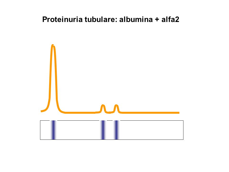 Proteinuria tubulare: albumina + alfa2