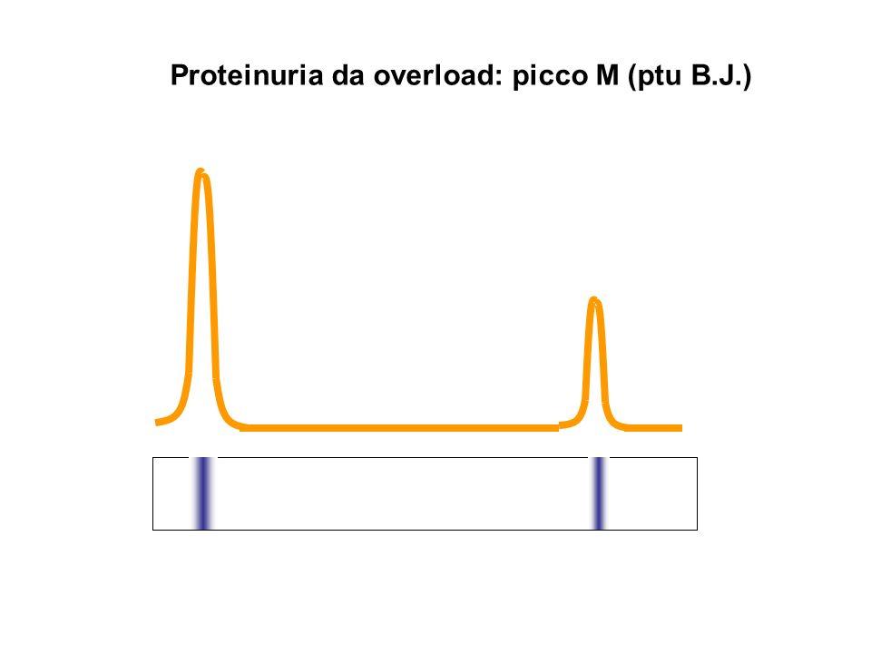 Proteinuria da overload: picco M (ptu B.J.)