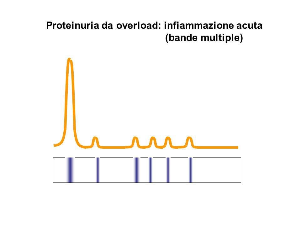 Proteinuria da overload: infiammazione acuta (bande multiple)