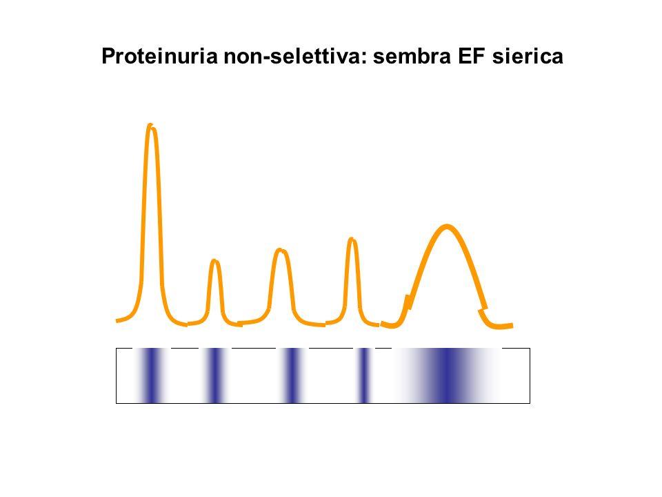 Proteinuria non-selettiva: sembra EF sierica