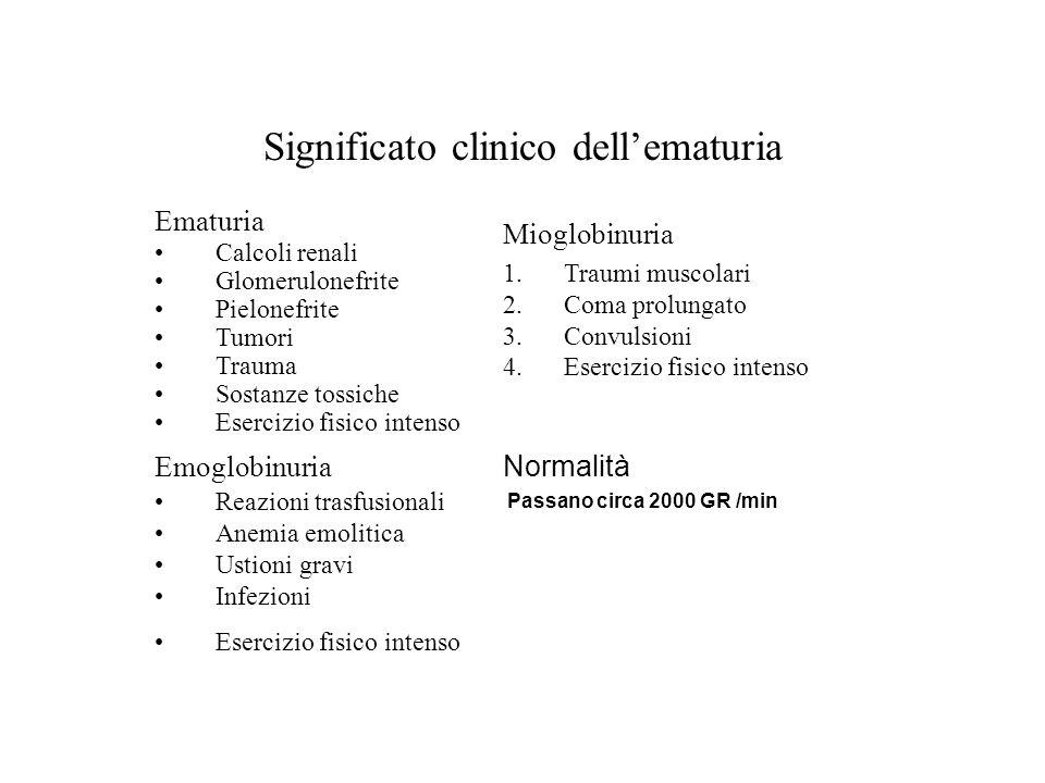 Significato clinico dellematuria Ematuria Calcoli renali Glomerulonefrite Pielonefrite Tumori Trauma Sostanze tossiche Esercizio fisico intenso Mioglo