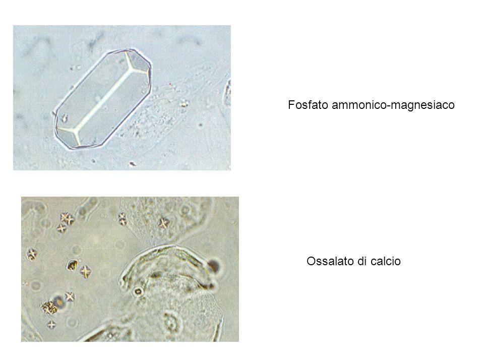 Fosfato ammonico-magnesiaco Ossalato di calcio