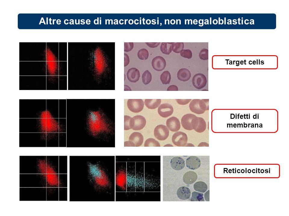 Altre cause di macrocitosi, non megaloblastica Target cells Difetti di membrana Reticolocitosi