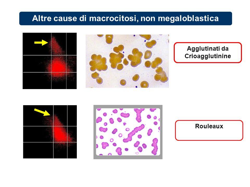 Rouleaux Agglutinati da Crioagglutinine Altre cause di macrocitosi, non megaloblastica