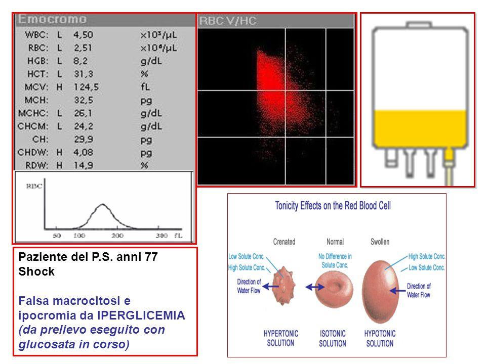 Paziente del P.S. anni 77 Shock Falsa macrocitosi e ipocromia da IPERGLICEMIA (da prelievo eseguito con glucosata in corso)