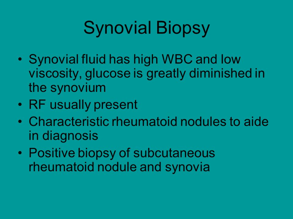 Synovial Biopsy Synovial fluid has high WBC and low viscosity, glucose is greatly diminished in the synovium RF usually present Characteristic rheumatoid nodules to aide in diagnosis Positive biopsy of subcutaneous rheumatoid nodule and synovia