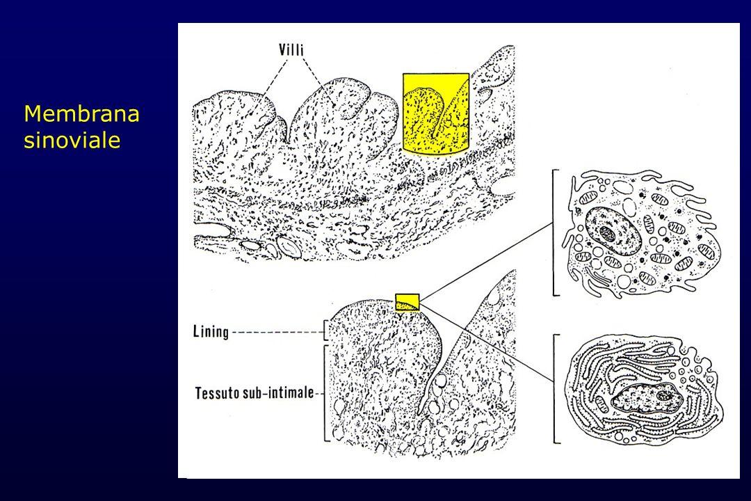 Membrana sinoviale