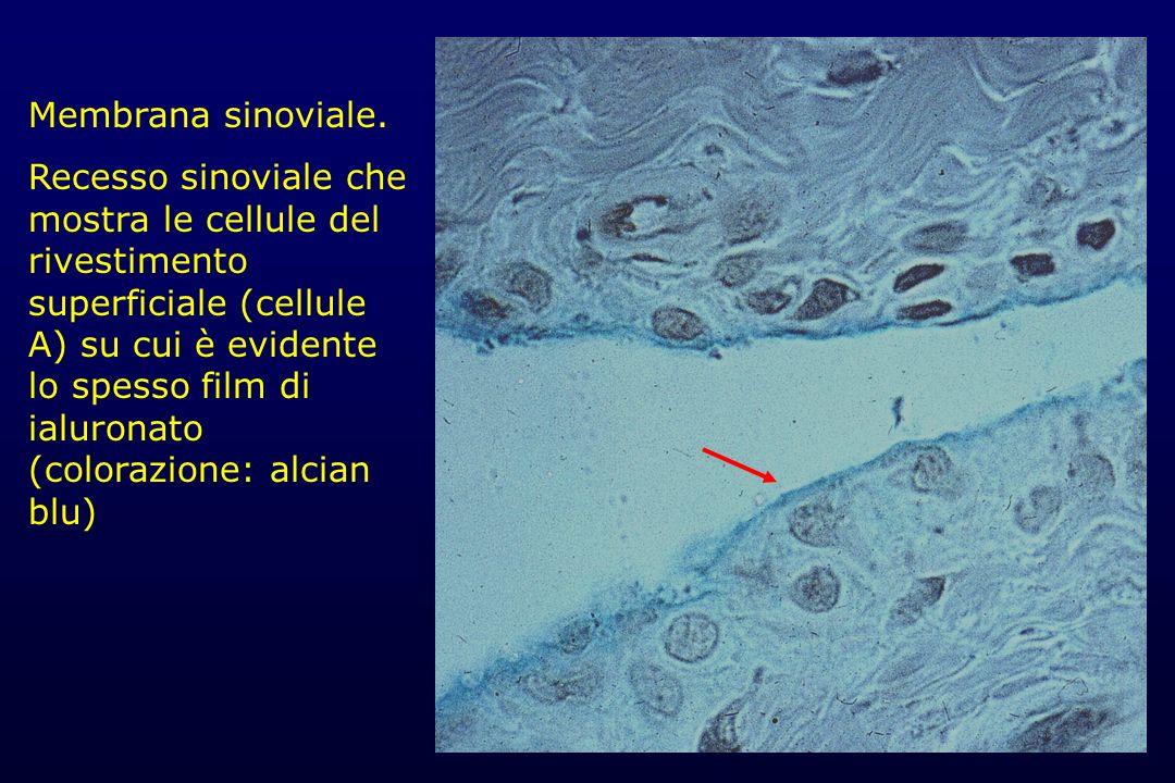 Membrana sinoviale. Recesso sinoviale che mostra le cellule del rivestimento superficiale (cellule A) su cui è evidente lo spesso film di ialuronato (