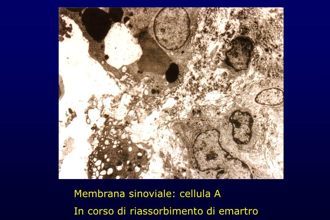 Membrana sinoviale: cellula A In corso di riassorbimento di emartro