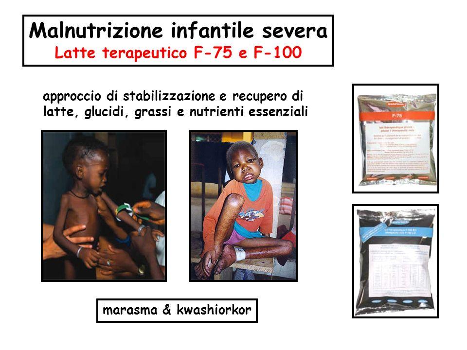 marasma & kwashiorkor Malnutrizione infantile severa Latte terapeutico F-75 e F-100 approccio di stabilizzazione e recupero di latte, glucidi, grassi