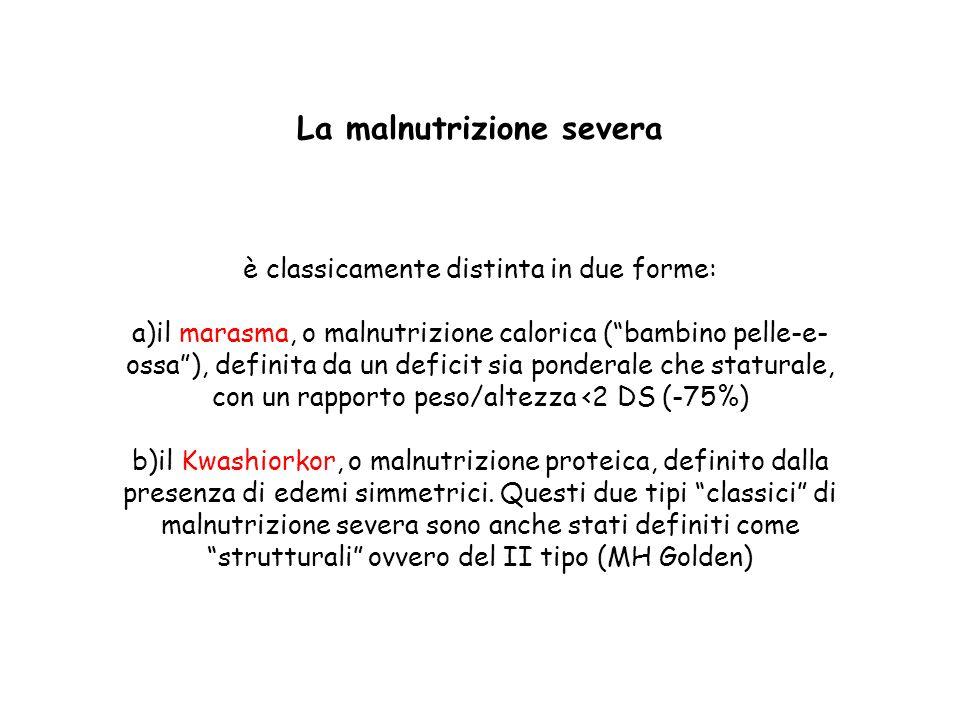 La malnutrizione severa è classicamente distinta in due forme: a)il marasma, o malnutrizione calorica (bambino pelle-e- ossa), definita da un deficit