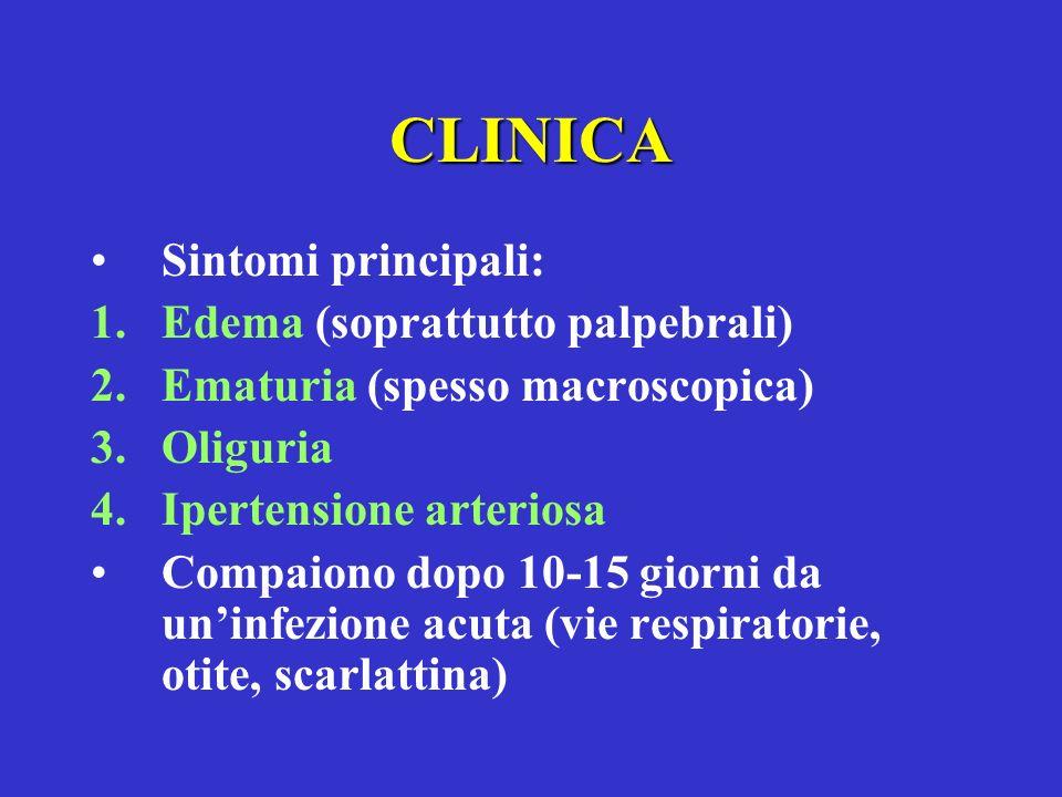 CLINICA Sintomi principali: 1.Edema (soprattutto palpebrali) 2.Ematuria (spesso macroscopica) 3.Oliguria 4.Ipertensione arteriosa Compaiono dopo 10-15