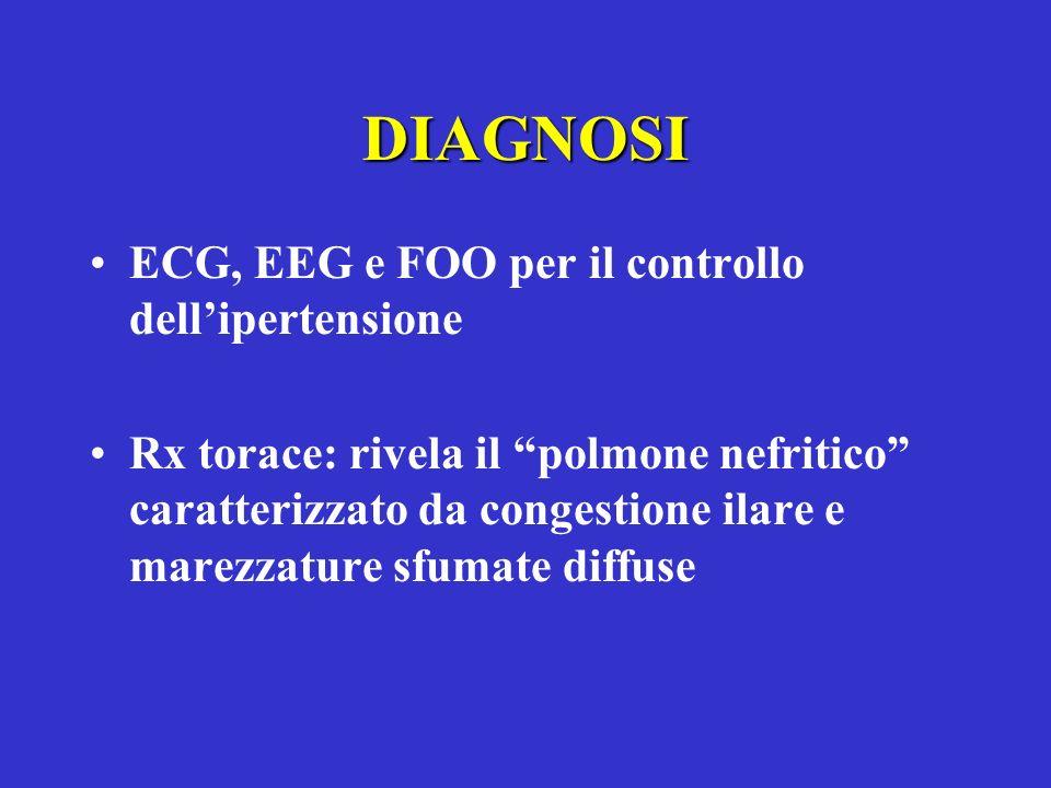 DIAGNOSI ECG, EEG e FOO per il controllo dellipertensione Rx torace: rivela il polmone nefritico caratterizzato da congestione ilare e marezzature sfu